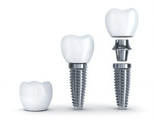 Did you know your dentist in Richmond can help renew the quality of your smile?